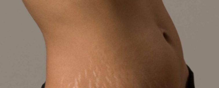 Боевые шрамы: как избавится от растяжек после родов!