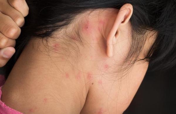 Акне по зонам: о каких проблемах организма могут говорить воспаления