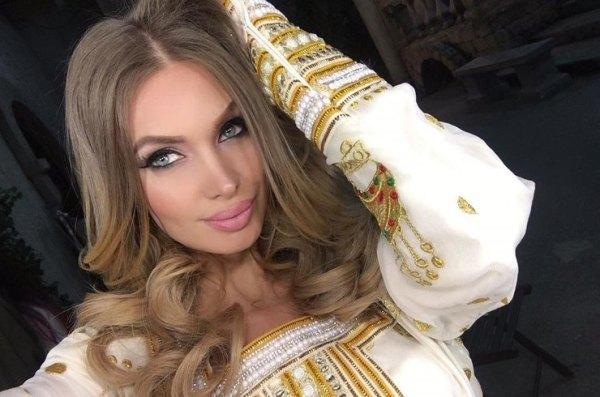 Звезды «на игле» - кто из российских звезд уже не может без уколов красоты