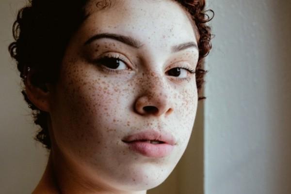 10 признаков того, что коже нужна экстренная помощь