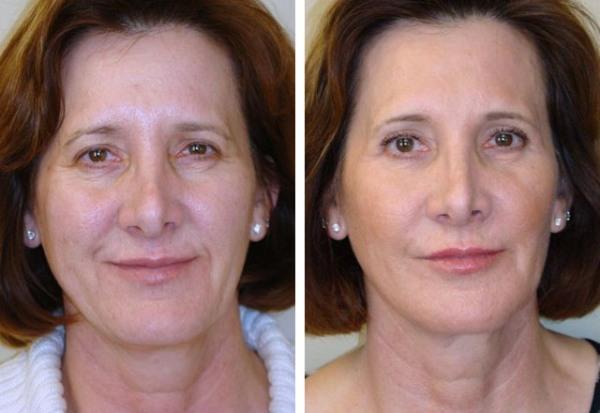5 косметологических процедур, которые чаще всего делают российские женщины старше 40 лет