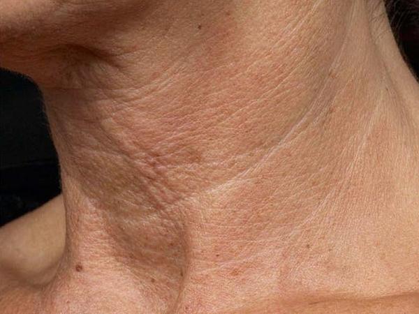 Круги на шее - болезнь тех, кто всё время за компьютером и в телефоне