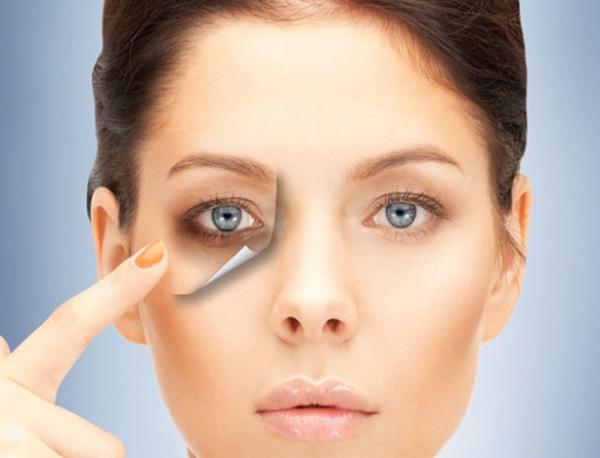 5 способов избавиться от мешков и синяков под глазами