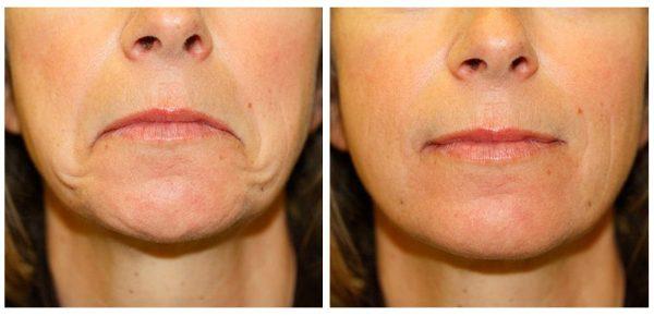 3 упражнения против опущенных уголков губ