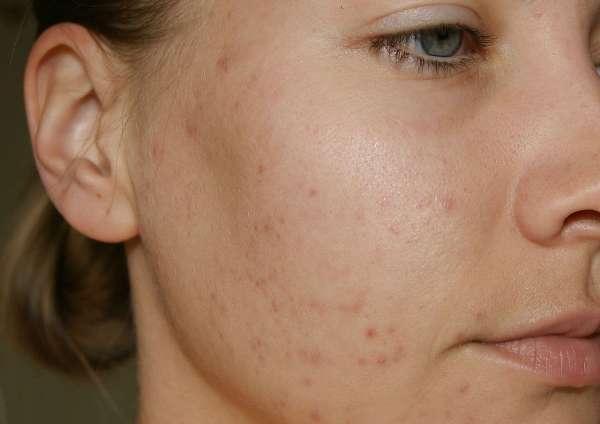 10 сигналов кожи, с которыми срочно нужно отправиться в косметологический кабинет