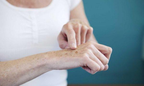 Как устранить пигментацию и сухость на руках?