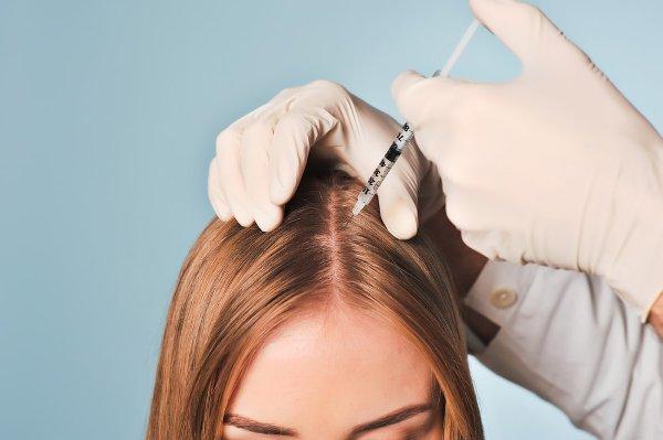 Почему мезотерапия не помогает от выпадения волос