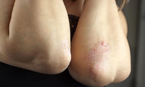 Что делать, если сильно сушится кожа на локтях