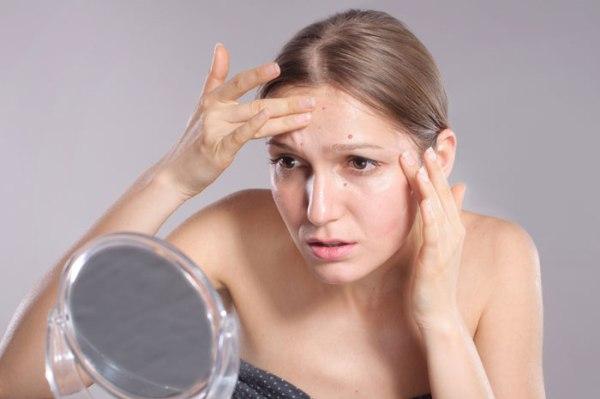 Как не стоит бороться с высыпаниями на лице, чтобы не сделать еще хуже