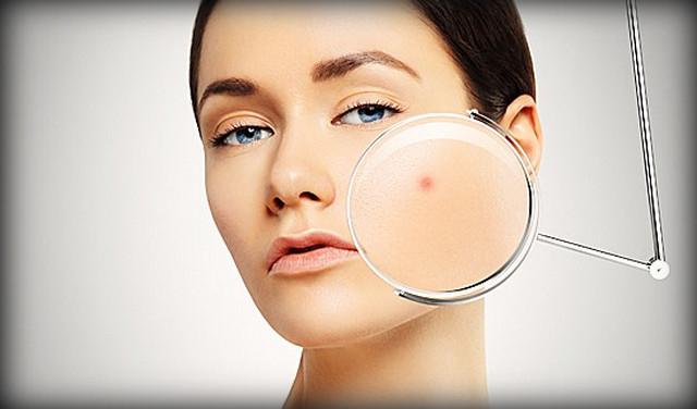 Как избавиться от воспалений на лице с помощью домашних средств за ночь