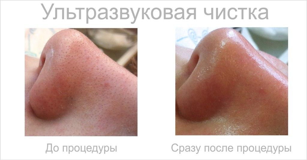 Ультразвуковая чистка: доступный профессиональный уход за кожей лица