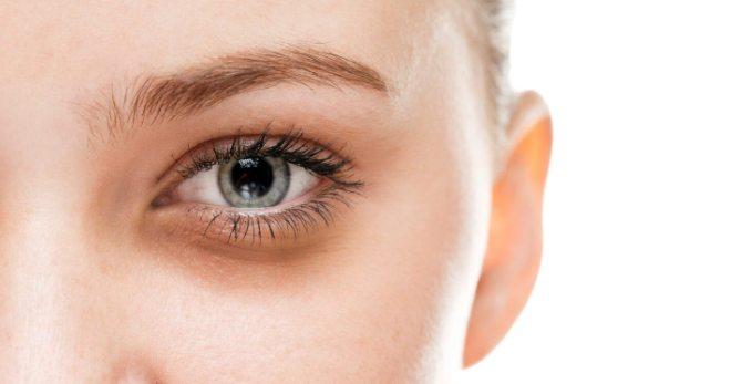 Почему с утра часто появляются синяки под глазами и какие средства с ними справятся