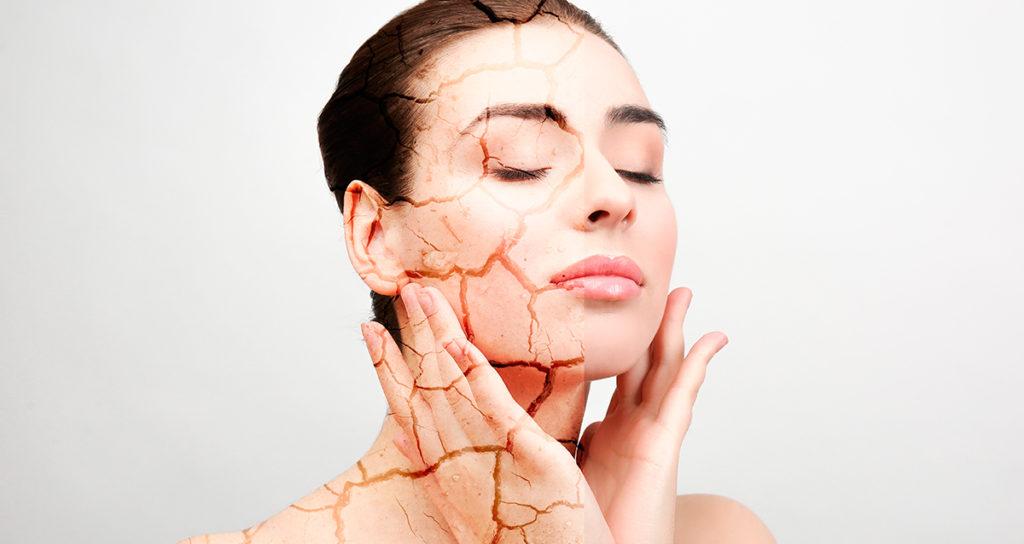 Как отличить сухую кожу от жирной, но пересушенной. Частые ошибки