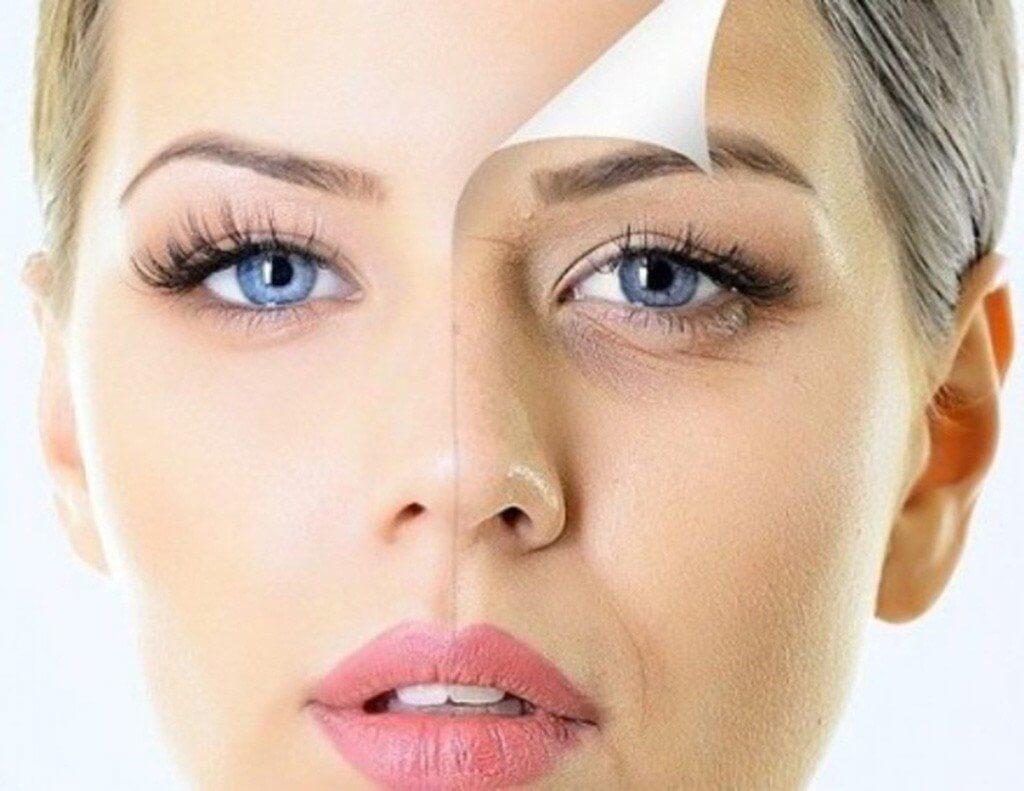 4 типа старения в зависимости от типа кожи и как их корректировать