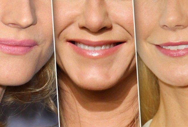 Почему с возрастом губы становятся тоньше и как вернуть им объём