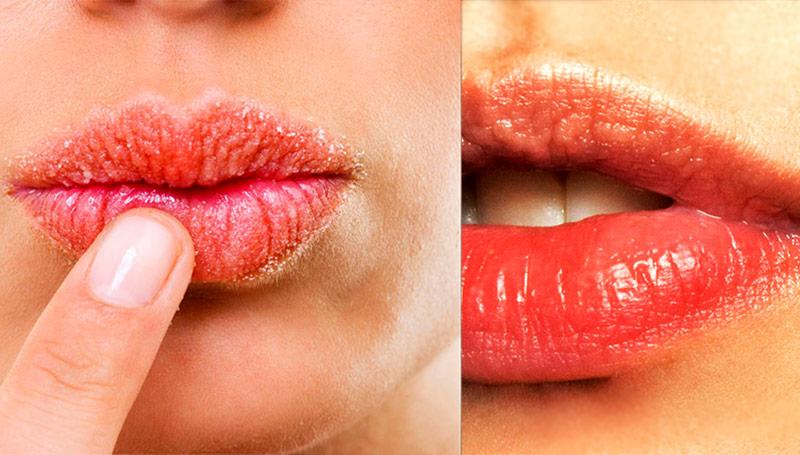 3 совета для тех, у кого постоянно трескаются губы