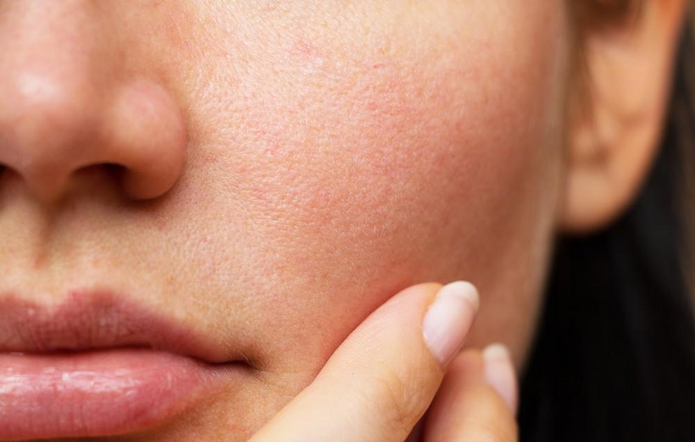 5 полезных рекомендаций по очистке забитых пор на лице