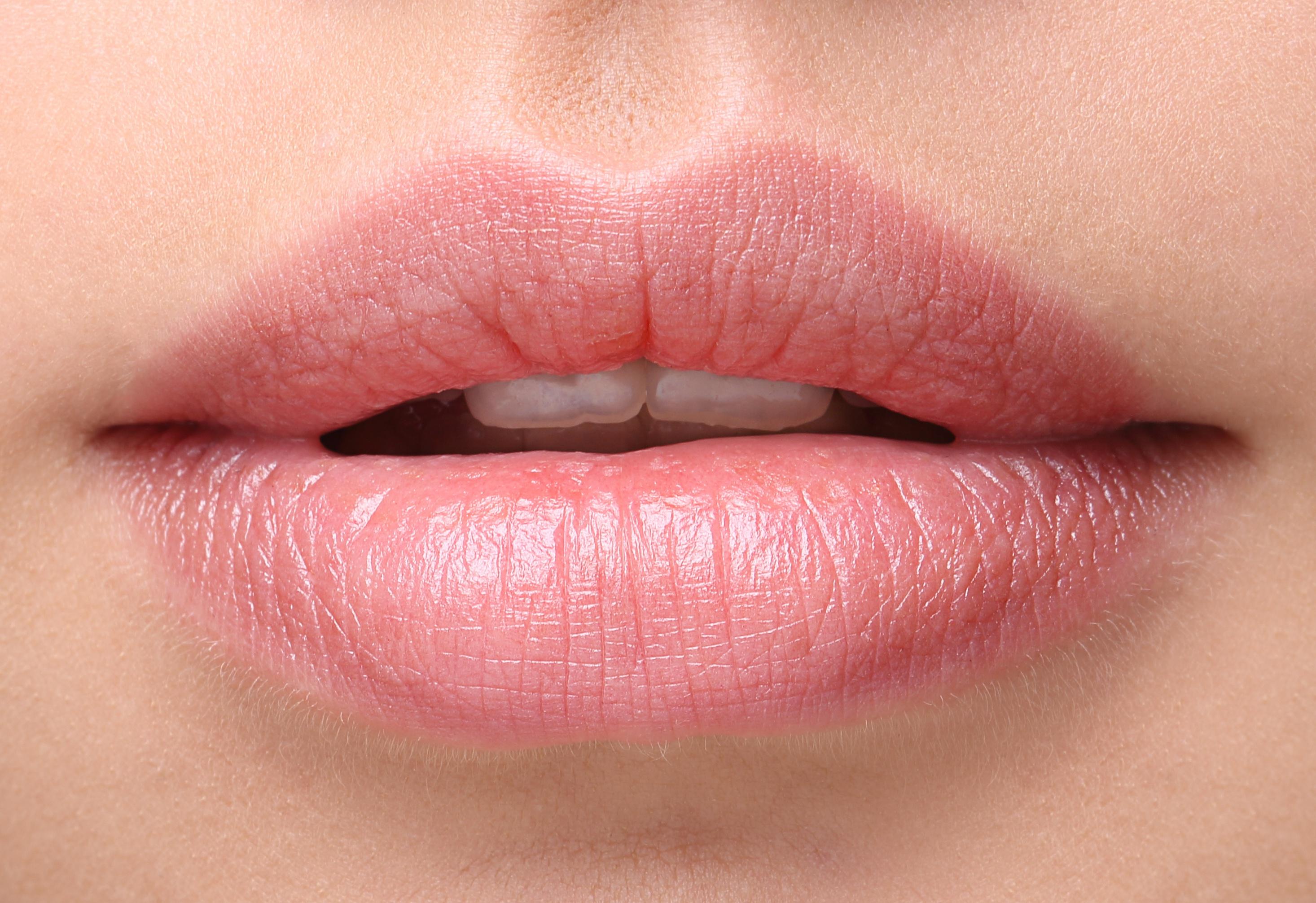 Масло или бальзам – какое средство поможет победить сухость губ