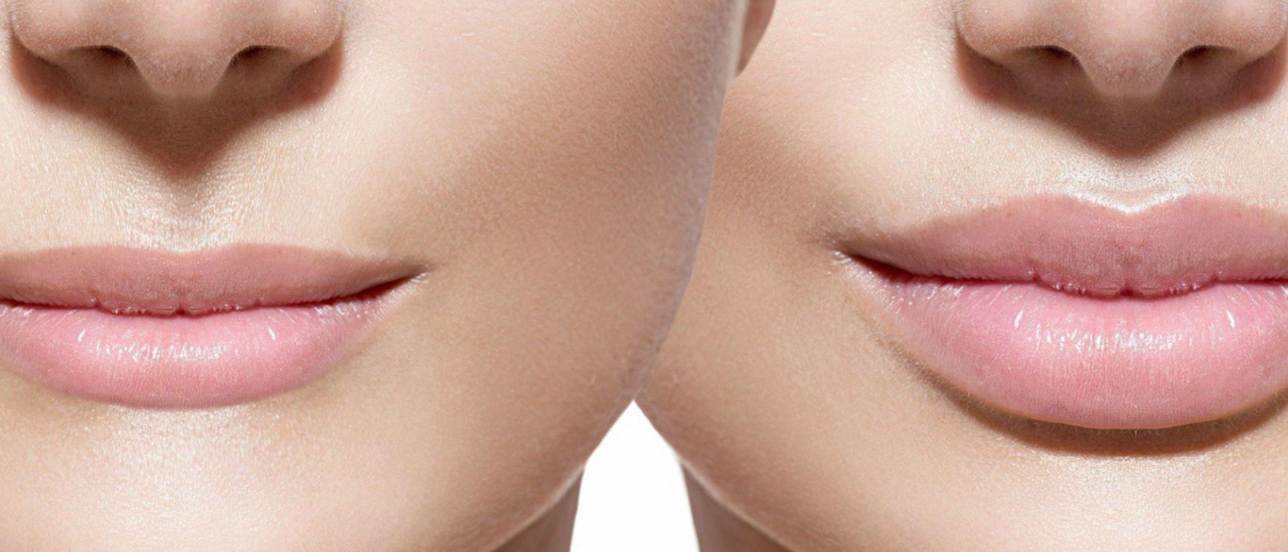 4 простых способа быстро увеличить губы без инъекций