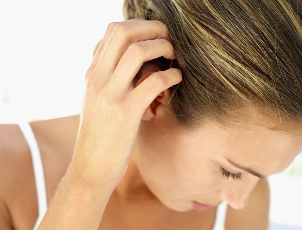 5 причин, по которым появляется перхоть и зуд кожи головы и как от этого избавиться