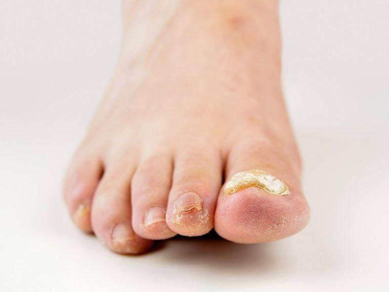 5 полезных советов для тех, кто страдает от шелушения кожи на пятках ног