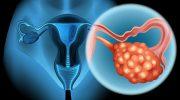 Рак яичника (1 стадия): диагностика, лечение