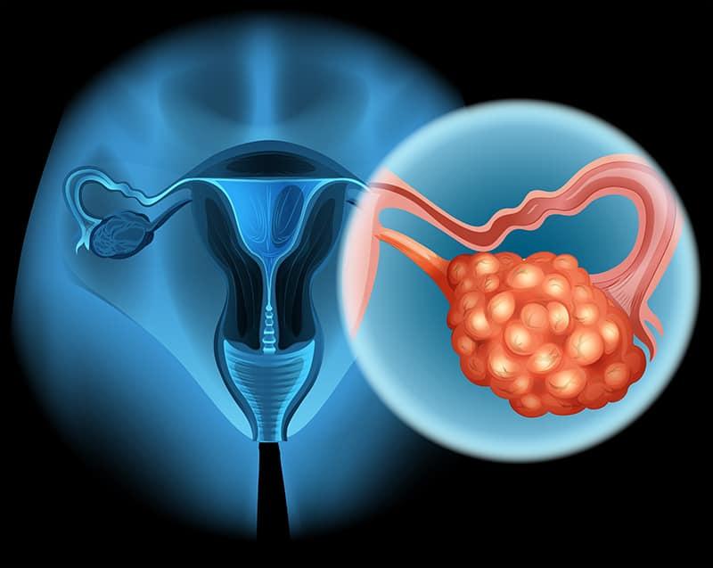 Рак яичника