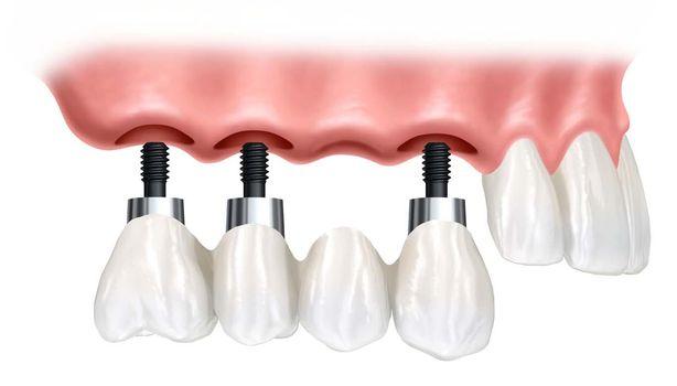 Основные виды и особенности имплантов зубов